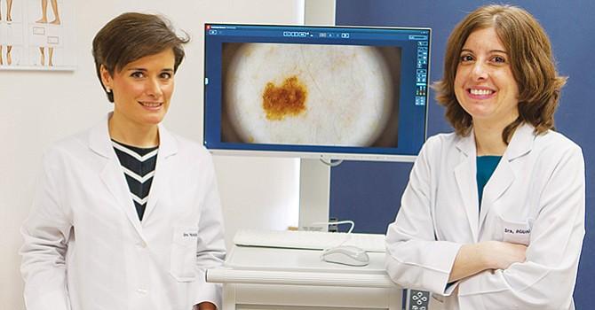 Anticípese al melanoma