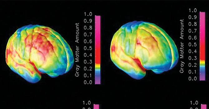 Nueva técnica de estimulación cerebral podría ayudar a combatir depresión