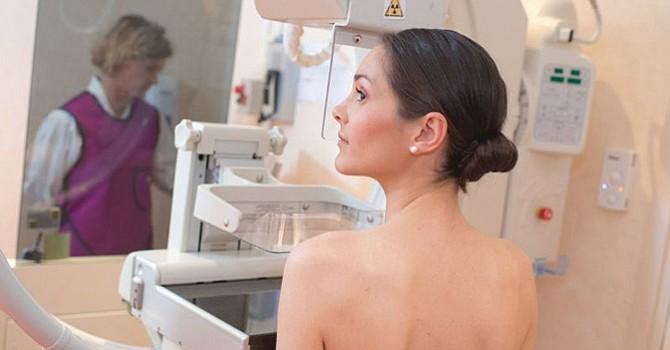 Cáncer de mama es la segunda causa de muerte en mujeres en EU, detectarlo a tiempo puede salvar su vida