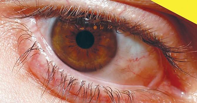 Retinopatía diabética, hasta un 45% de quienes padecen diabetes corren el riesgo de esta enfermedad que causa ceguera