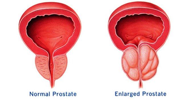 Reduce la necesidad de repetición de la biopsia del cáncer de próstata