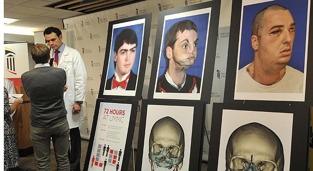 Doctor Eduardo D. Rodriguez muestra imágenes de Richard Lee Norris antes y después del accidente; y después del trasplante.