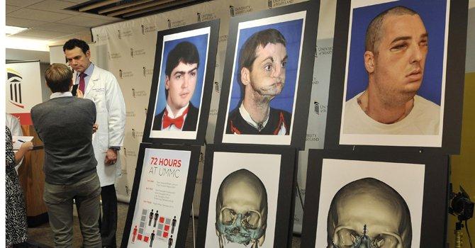 Virginia: paciente de trasplante de rostro sale a luz