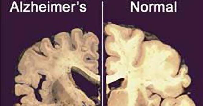 Antidepresivo funcionaría contra el Alzheimer