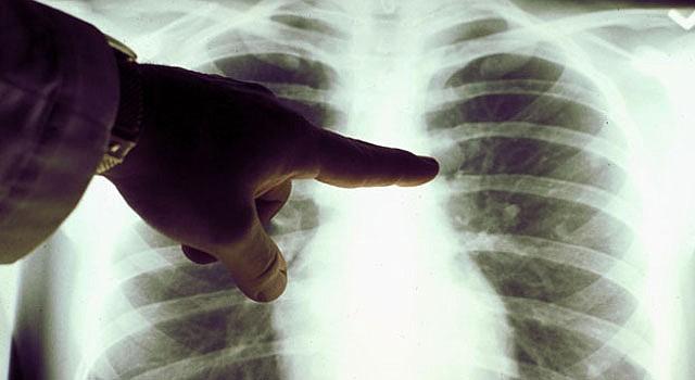 Imagen de RX de la cavidad torácica y pulmonar.