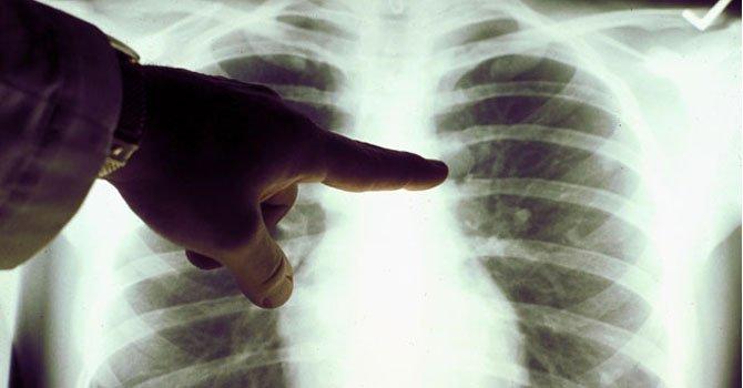 Algunos cánceres de pulmón son inofensivos