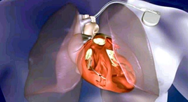 La prevención ayuda a mantener sano al corazón, para evitar el uso de dispositivos, como el marcapasos de la imagen.