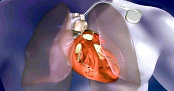 Hormona contra la obesidad protege al corazón