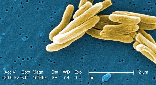 La bacteria de la tuberculosis, expandida 15.549 veces.