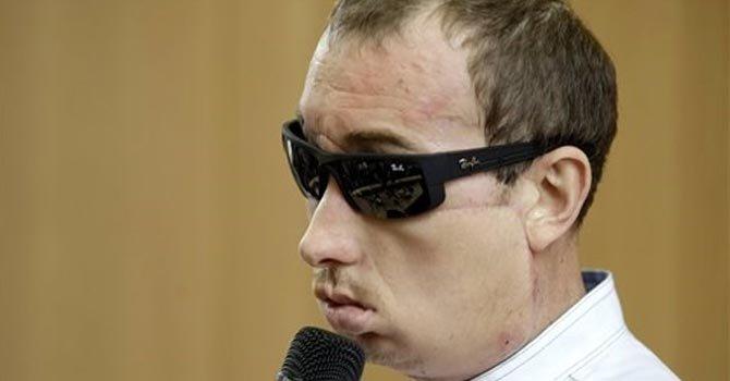 Polonia: persona con trasplante facial es dado de alta