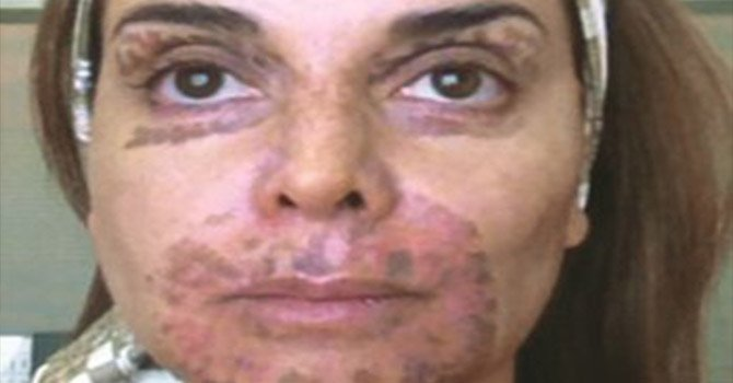 Lupita Jones se quema el rostro