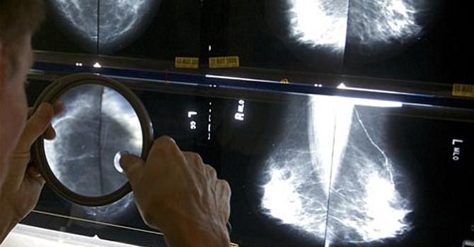 ¿Es necesaria una mamografía a los 89 años?