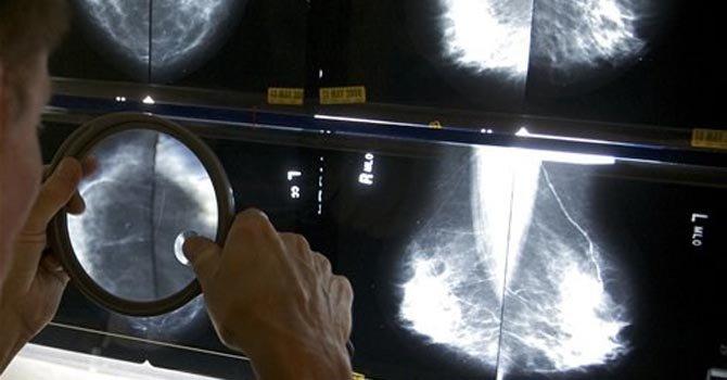 ¿Son necesarias las mamografías en tres dimensiones?