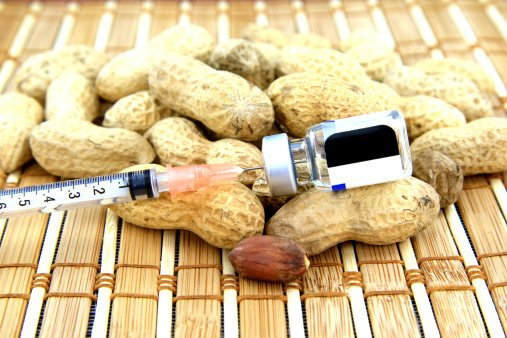 Todo lo que necesitas saber sobre las alergias alimenticias en la niñez