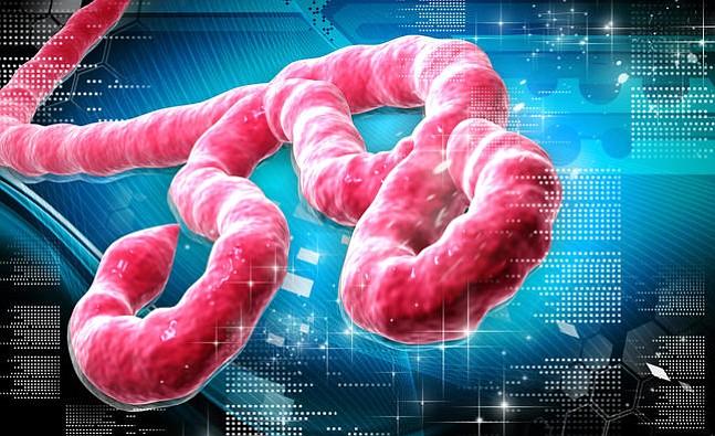 Todo lo que usted quería saber sobre el virus ébola