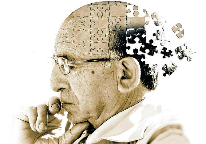 BOSTON: Chequeo GRATIS de la enfermedad de Alzheimer