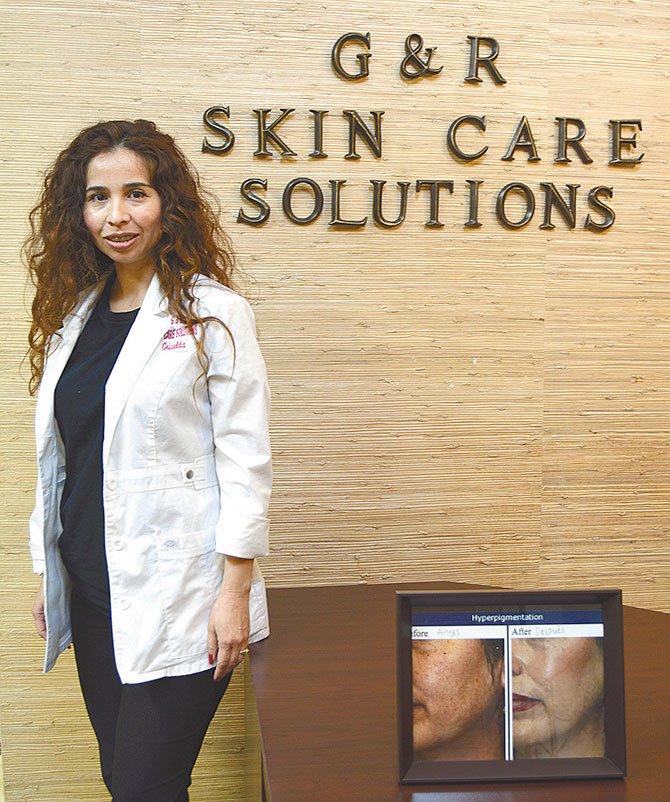 G&R Skin Care Solutions  Para consultas y citas llame a Griselda Reyes al (512) 789-5008 los resultados pueden verse en tres sesiones dependiendo del tipo de acné.