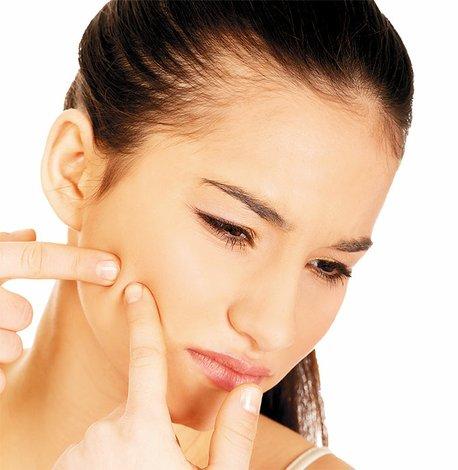 Cuídate del acné