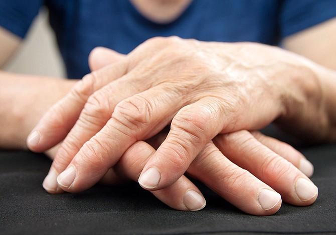 Los síntomas de la artritis reumatoide