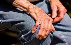 Hispanos y blancos más propensos a padecer Parkinson