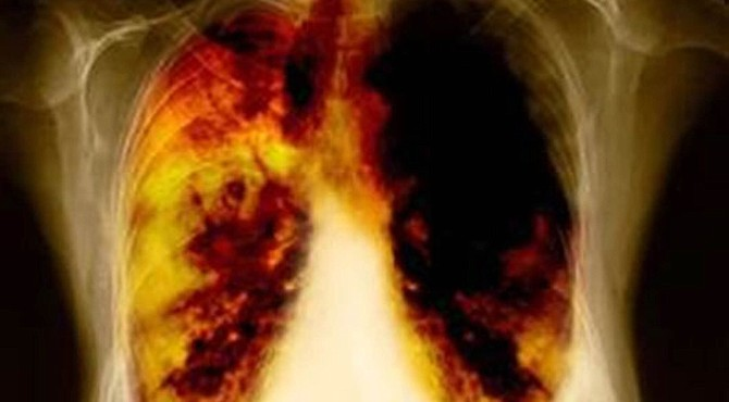 Filadelfia en las investigaciones del cáncer de pulmón
