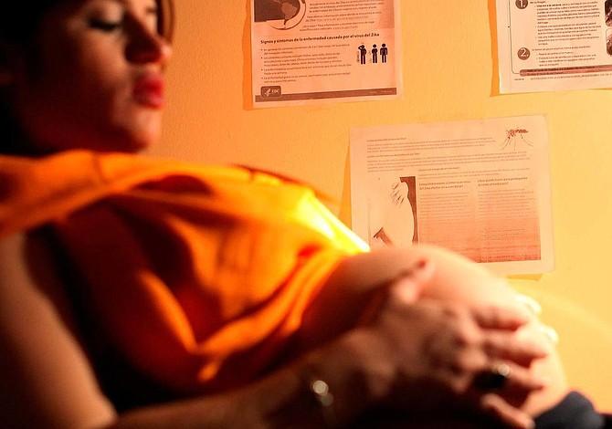 Zika podría causar abortos o tejido cerebral blando en bebés
