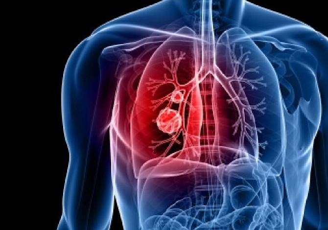 Identificada una proteína clave en la progresión de los tumores