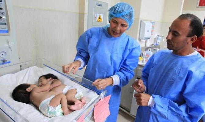 Separadas con éxito siamesas nacidas con el vientre unido