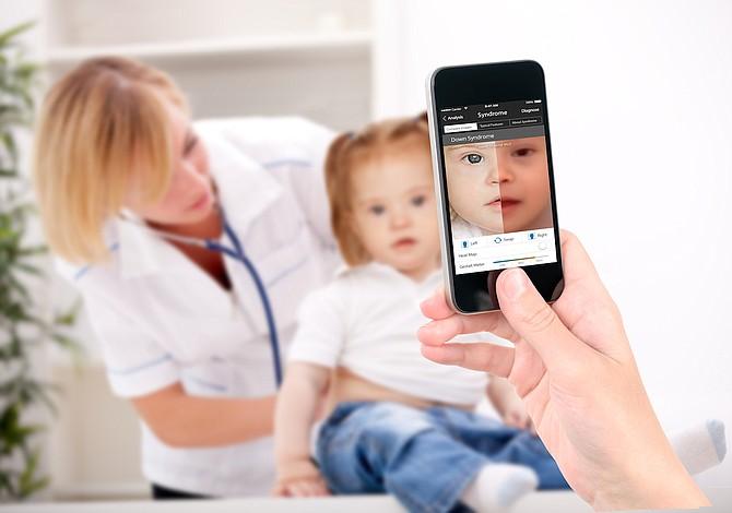 Una aplicación revela enfermedades raras con reconocimiento facial