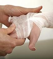 La lepra sigue causando aislamiento