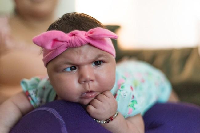 La marca del zika: mamá hispana cuenta el dolor de tener una beba con microcefalia