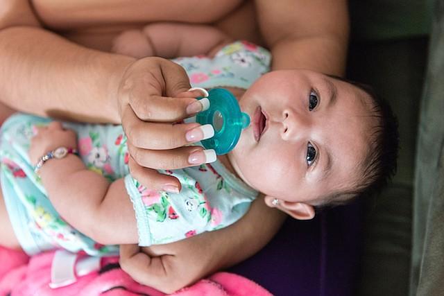 Aryanna nació con la microcefalia inducida por Zika, una condición en la cual la cabeza es más pequeña que la media.