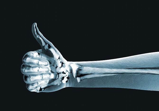 Estudiantes mexicanos crearon material para regenerar huesos por impresión 3D