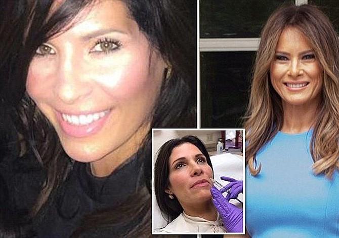 Mujer se sometió a nueve operaciones para parecerse a Melania Trump