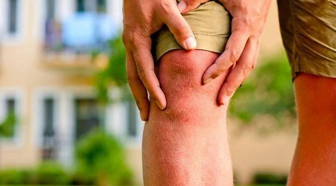 Luego de una cirugía menor de rodilla, ¿son necesarias 90 pastillas de un poderoso opioide?