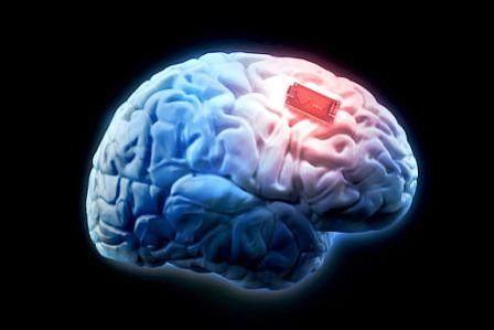 Mexicanos desarrollan implante que ayudaría a tratar Alzheimer y Parkinson
