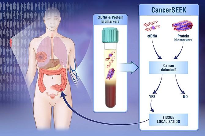 En el Centro Oncológico Kimmel de Johns Hopkins investigadores han desarrollado un análisis de sangre que sirve para detectar ocho de los tipos de cáncer más comunes y ayuda a identificar la ubicación del cáncer.