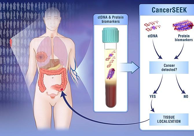Un solo análisis de sangre para detectar ocho tipos de cáncer