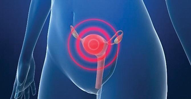 A nivel mundial las latinas son las que más padecen de cáncer cervical. Foto: opuholi.org