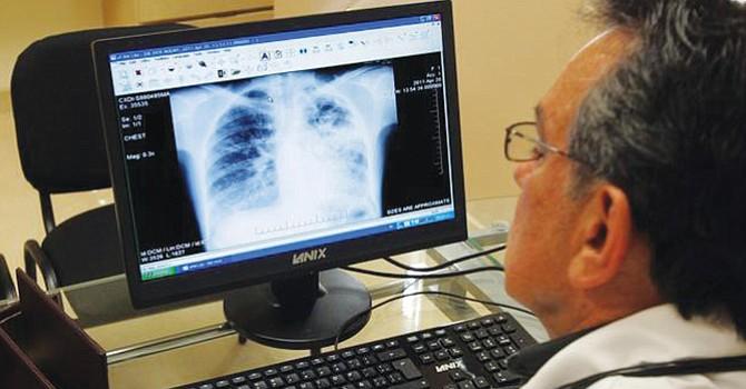 Los síntomas de tuberculosis activa incluyen tos persistente, fiebre, sudores nocturnos y pérdida de peso inexplicable. Foto: The San Diego Union-Tribune.