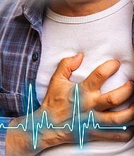 CORAZÓN FUERTE. Recuerde que lo mejor para evitar males cardiacos es llevar un estilo de vida saludable: buena alimentación, vivir sin estrés y hacer deporte.