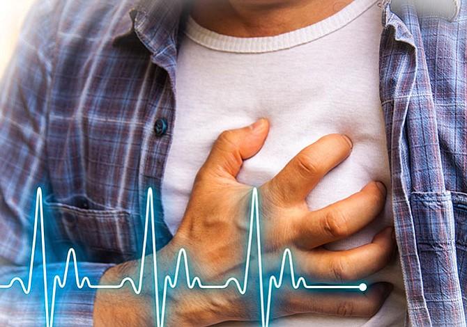 La bradiarritmia puede causar un infarto eléctrico cardíaco