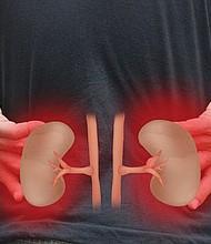 Los riñones pueden sufrir diferentes tipos de daño de tipo inmunológico e infeccioso como son el cáncer o los cálculos. . Foto: lavidalucida.com.