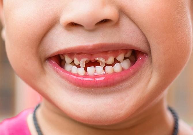 La investigación se basó exclusivamente en caries por su impacto en la salud infantil