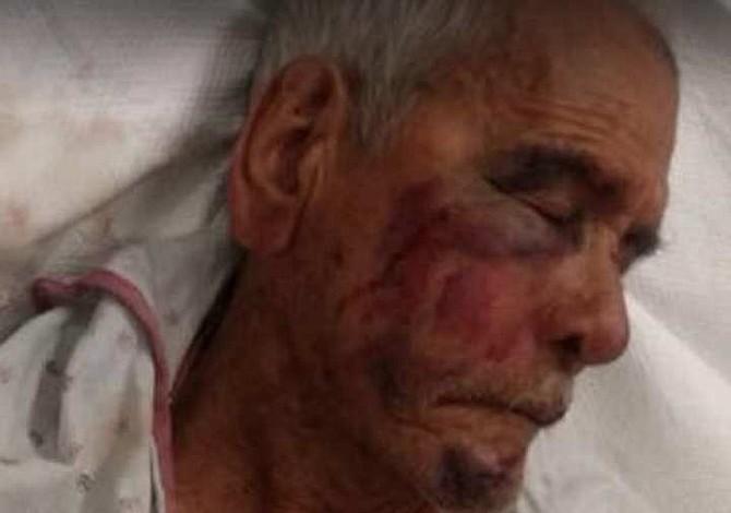 Atacaron con un ladrillo a un mexicano de 92 años en Los Ángeles