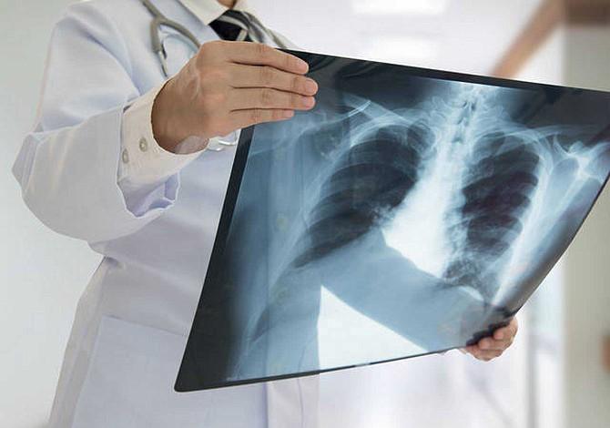 25% de enfermos de cáncer de pulmón desarrollan metástasis cerebral