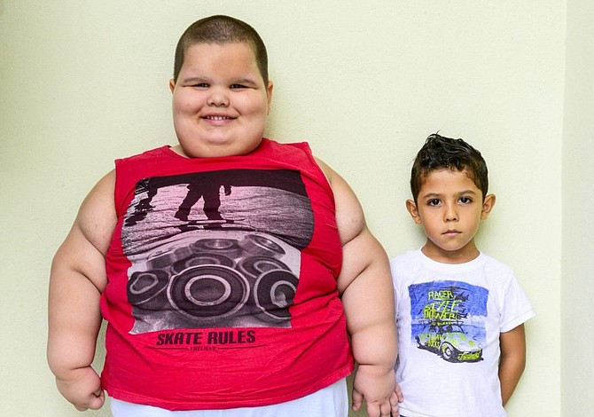 Cirugía bariátrica para niños obesos puede salvar vidas