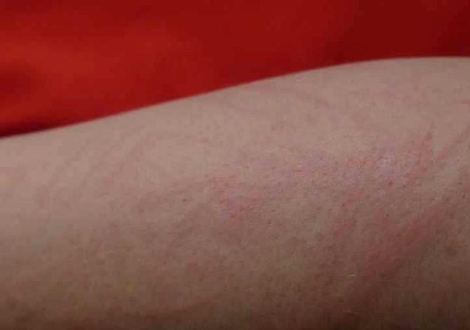 Sífilis, la enfermedad cuyos síntomas pasan desapercibidos y años después puede ser mortal