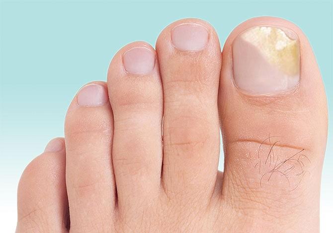 Remedios caseros para las infecciones en los pies