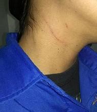 VENEZUELA. La periodista fue agredida en una marcha chavista
